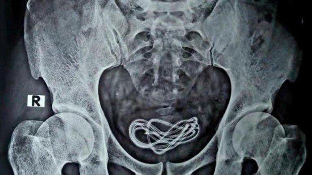 Más conocido como Sounding, la introducción de objetos por la uretra del pene.